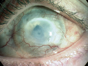 Limbal epithelial stem cells of the cornea | StemBook