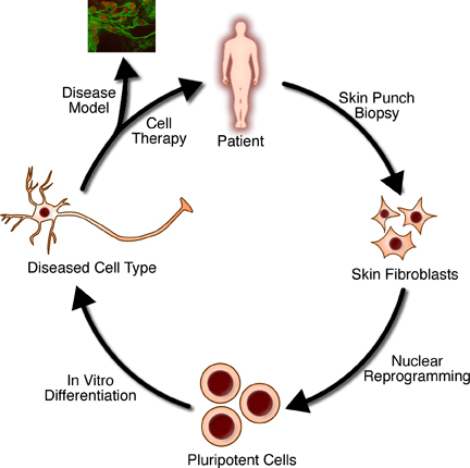 the use of regenerative medicine in revolutionizing organ transplantation Regenerative medicine is an emerging field that aims to  the use of stem cells to  provide limitless supplies of cells for transplant  and tissue engineering to  generate replacement tissues and organs, and the  the field is on the cusp of  revolutionizing biomedical science, and as regenerative medicine.