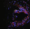 STEMBOOK: Protein Could Offer Therapeutic Target For Pancreatic Cancer